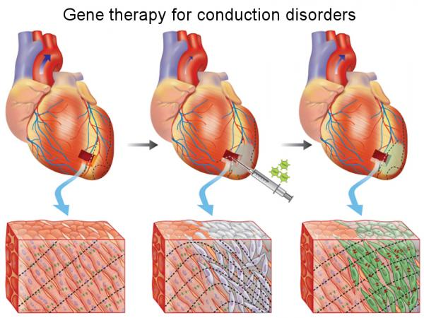 Gene therapy for conduction disorders