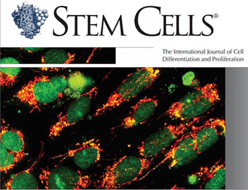 Arti Ramkisoensing publishes commentary in Stem Cells: Aging and Regeneration